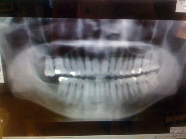 看我的牙齒有亮亮的,全是給一個用銀粉的牙醫捕的,真難看,改天要全把它換下來